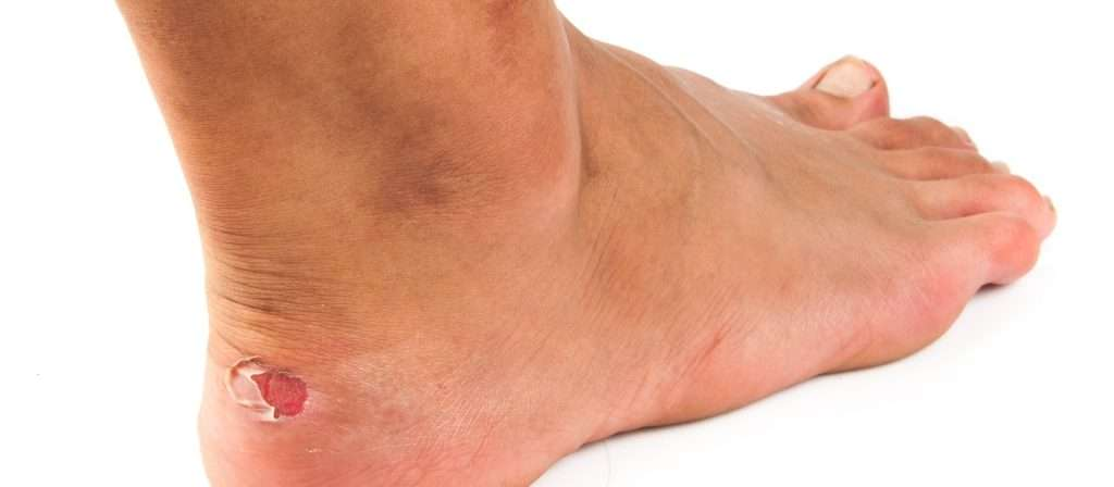 Play ultimate frisbee barefoot to avoid getting blisters from cleats.