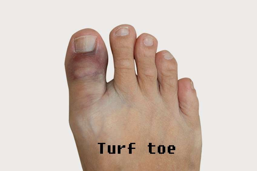 Play ultimate frisbee barefoot to avoid developing turf toe